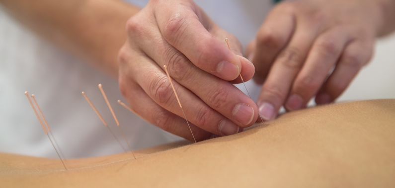 Akupunktur mod kroniske smerter